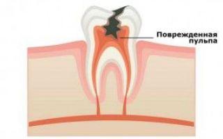 Сколько держится температура после удаления зуба мудрости