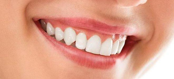 Зубная паста при воспалении десен