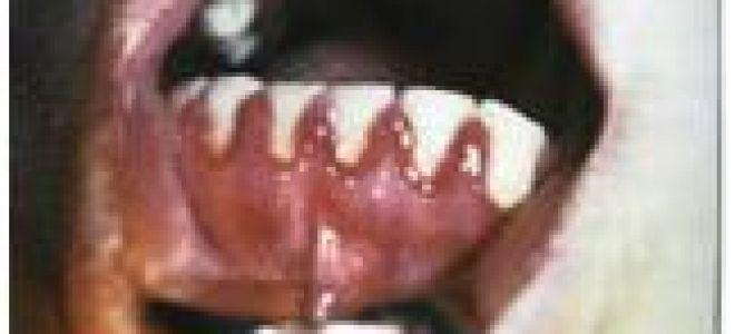 Лечить зубы при беременности на ранних сроках