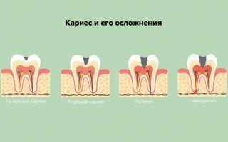 Больно ли лечить зуб без нерва
