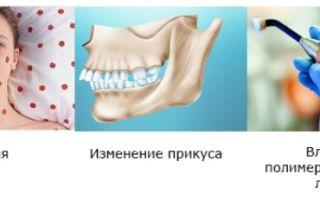 Будет ли болеть зуб после удаления нерва