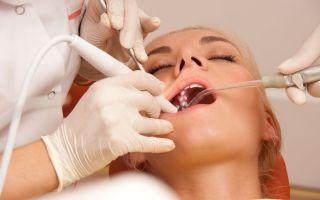 Протезирование зубов под общим наркозом