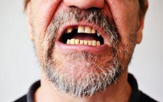 Человек без зубов