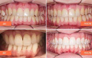Исправление зубов без брекетов у взрослых