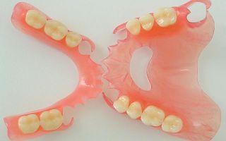 Обтачивание зубов