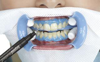 Лучший отбеливатель зубов