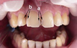 Пломба между зубами