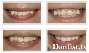 Как выпрямить передние зубы без брекетов