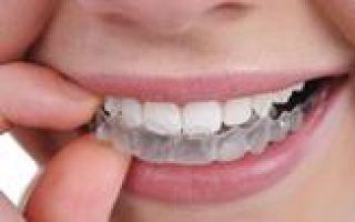 Обезболивающие уколы в стоматологии