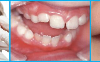 Зубы в три года