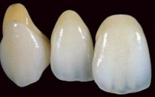 Зубные коронки на передние зубы