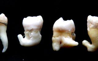 Больно открывать рот после удаления зуба