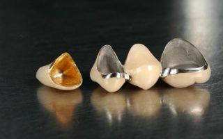Какие зубные коронки лучше