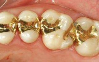 Вкладки стоматологические