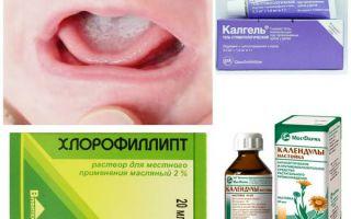 Стоматит бактериальный лечение