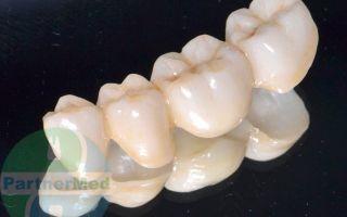 Как делают зубные мосты