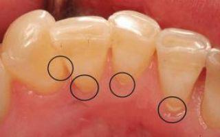 Как удаляют зубной камень