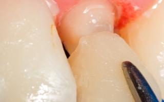 Как делают слепок зубов