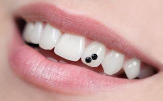 Клипсы на зубы