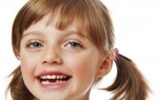 Когда начинают выпадать молочные зубы