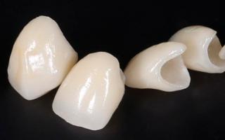 Вкладка зуб