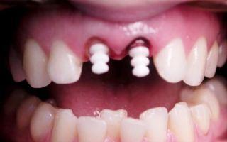 Искусственный зуб на штифте