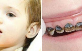 Что такое серебрение зубов