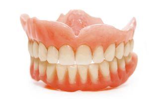 Имплантация зубов на верхней челюсти