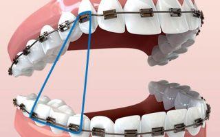 Резинки на зубы