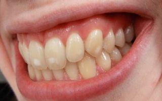Меловидные пятна на зубах лечение
