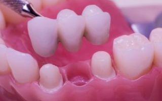 Льготное протезирование зубов для инвалидов