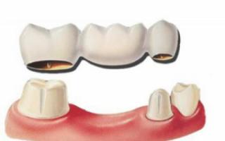 Протезирование при отсутствии жевательных зубов