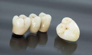 Что такое металлокерамика в стоматологии