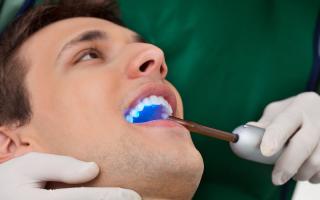 Осложнения кариеса зубов