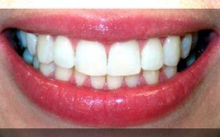 47 зуб