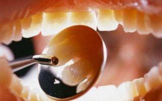 Чем можно закрыть дырку в зубе