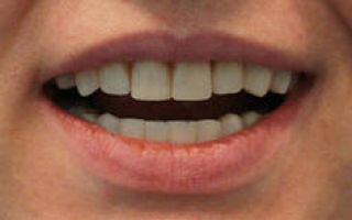 Болит зуб со штифтом без нерва