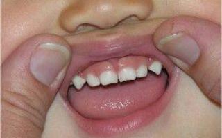 6 зуб молочный или постоянный