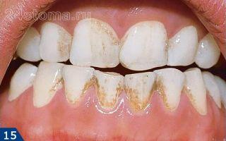 Снять налет с зубов в домашних условиях
