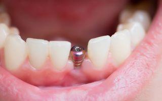 Врач вставляющий зубы