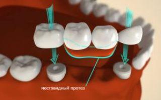 На сколько зубов можно поставить мост