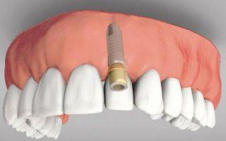 Как протезируют передние зубы