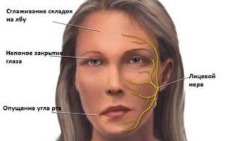 Воспаление тройничного нерва на лице симптомы