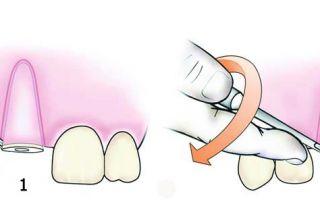Чем вырывают зубы инструмент