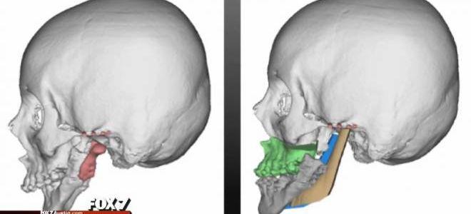 Люди без нижней челюсти