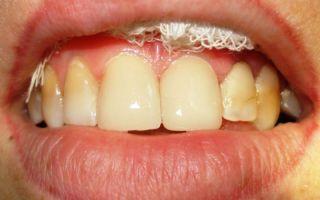 Появилась щель между передними зубами