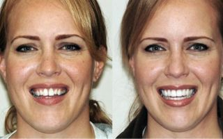 Лицо до и после брекетов