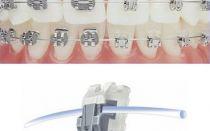 Зачем нужны брекеты на зубах