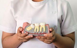 Ибупрофен после удаления зуба