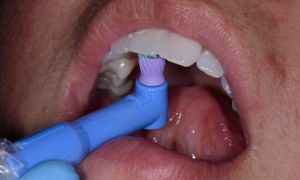 Проф чистка зубов до и после